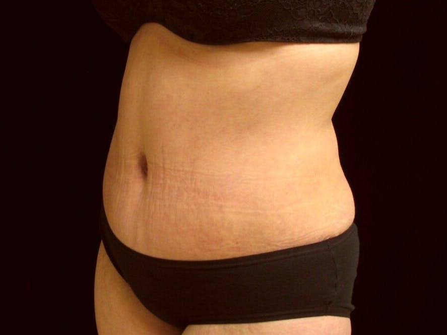 Tummy Tuck Gallery - Patient 39245378 - Image 8