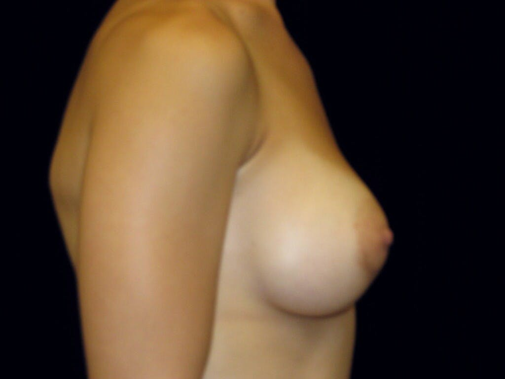 Breast Augmentation Gallery - Patient 39245379 - Image 6