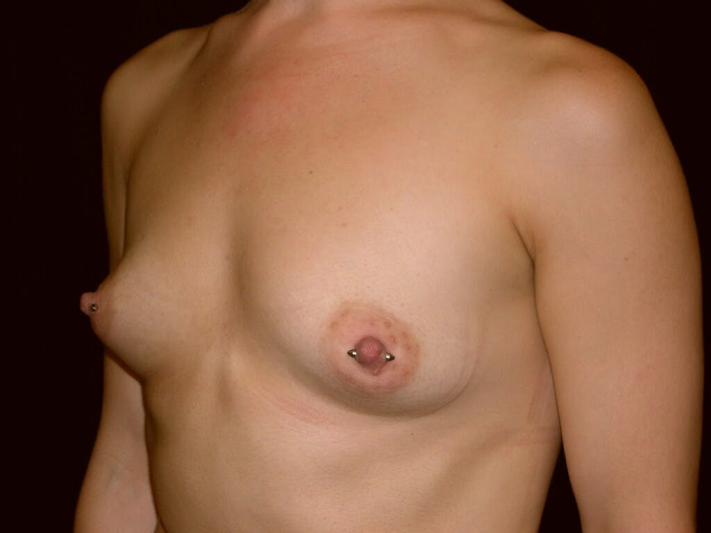 Breast Augmentation Gallery - Patient 39245379 - Image 7