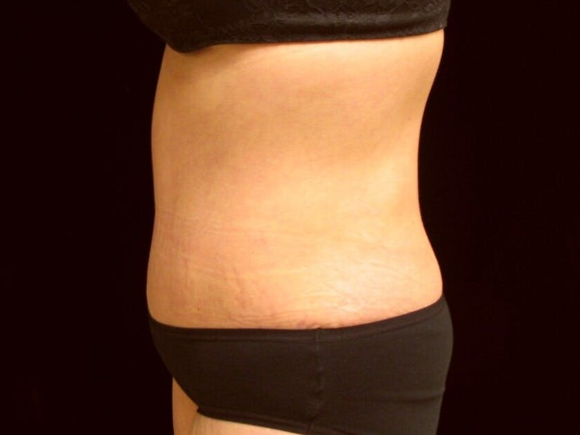 Tummy Tuck Gallery - Patient 39245378 - Image 10