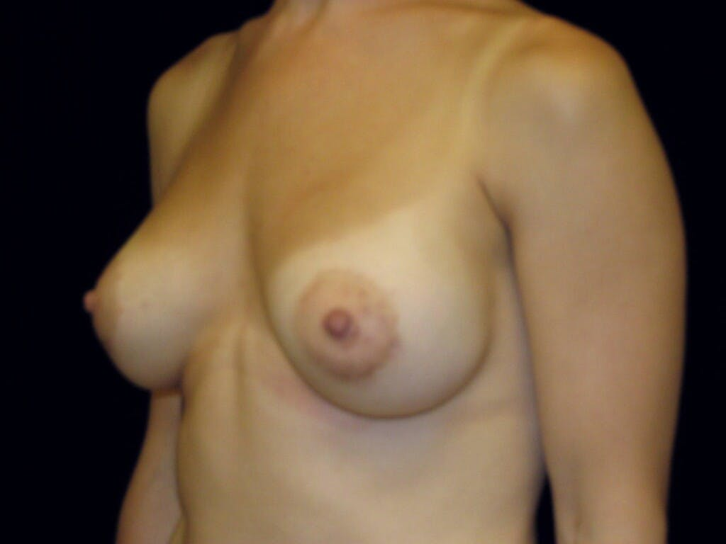 Breast Augmentation Gallery - Patient 39245379 - Image 8