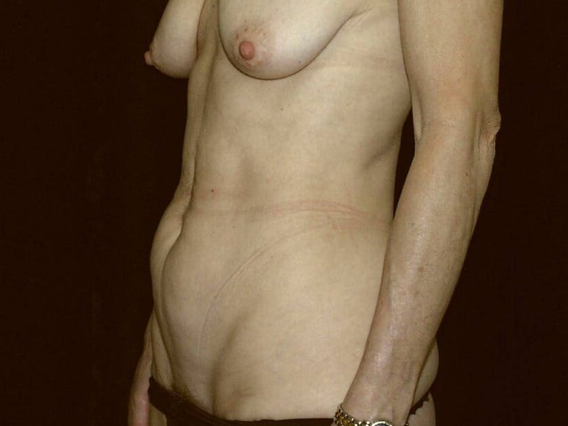 Tummy Tuck Gallery - Patient 39245381 - Image 1