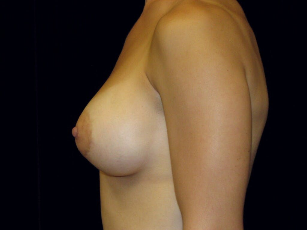 Breast Augmentation Gallery - Patient 39245379 - Image 10