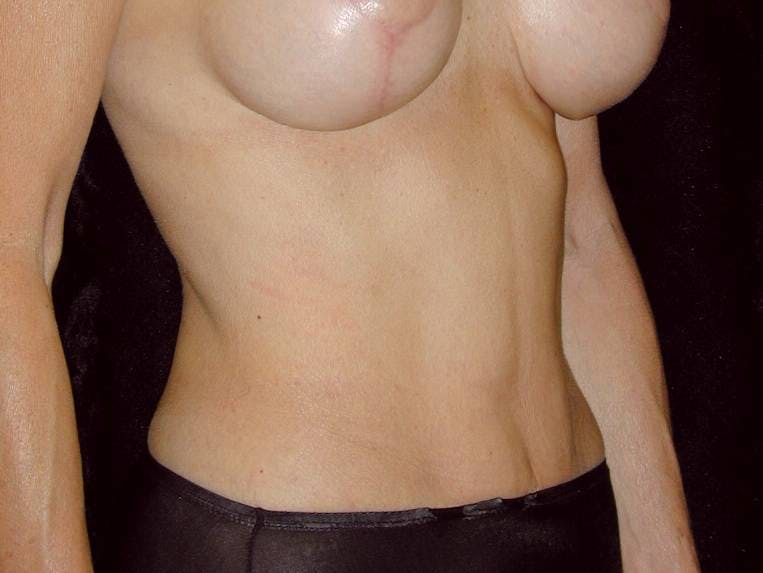 Tummy Tuck Gallery - Patient 39245381 - Image 4