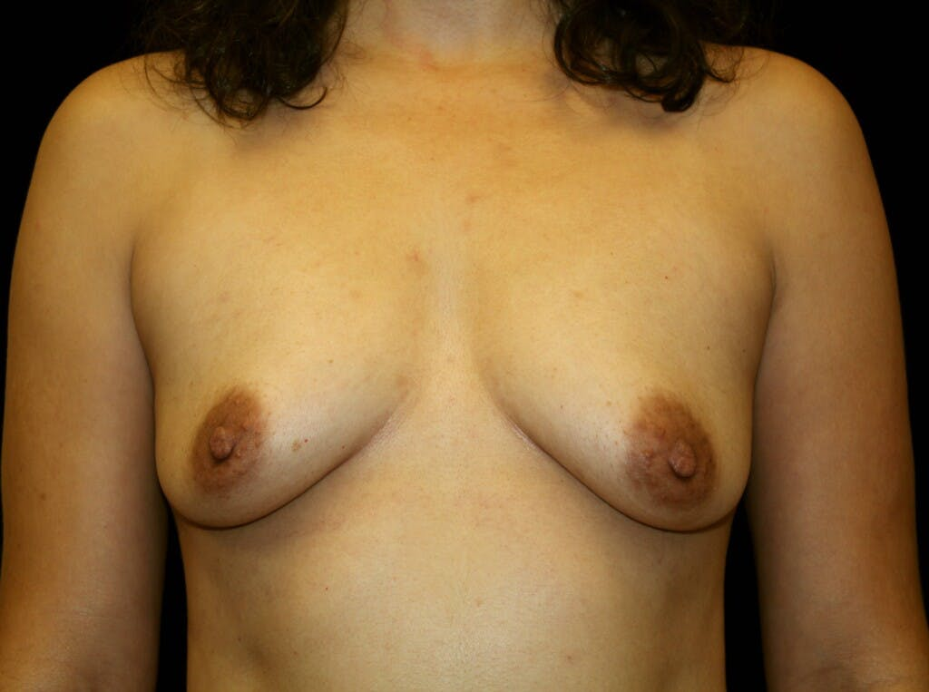 Breast Augmentation Gallery - Patient 39245382 - Image 1