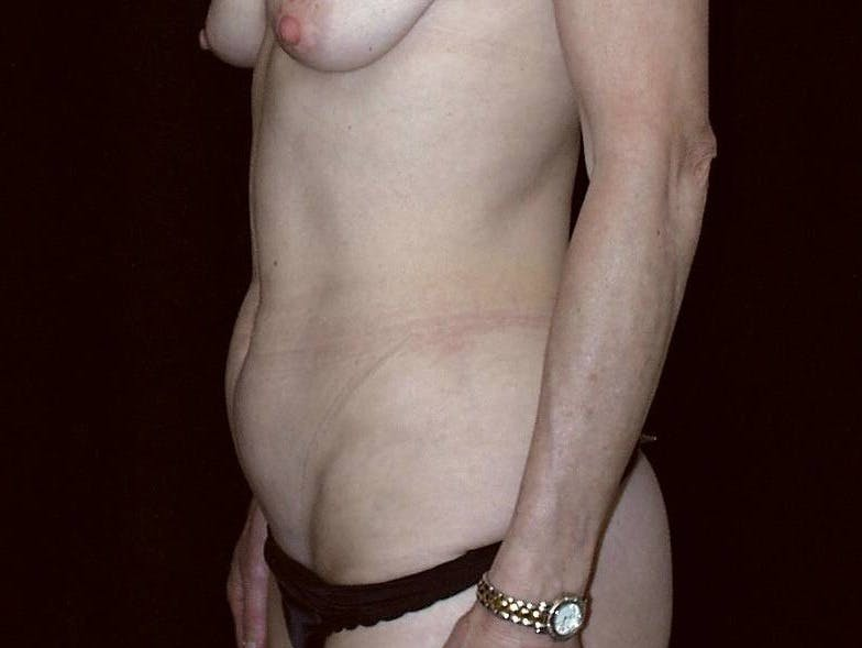 Tummy Tuck Gallery - Patient 39245381 - Image 5