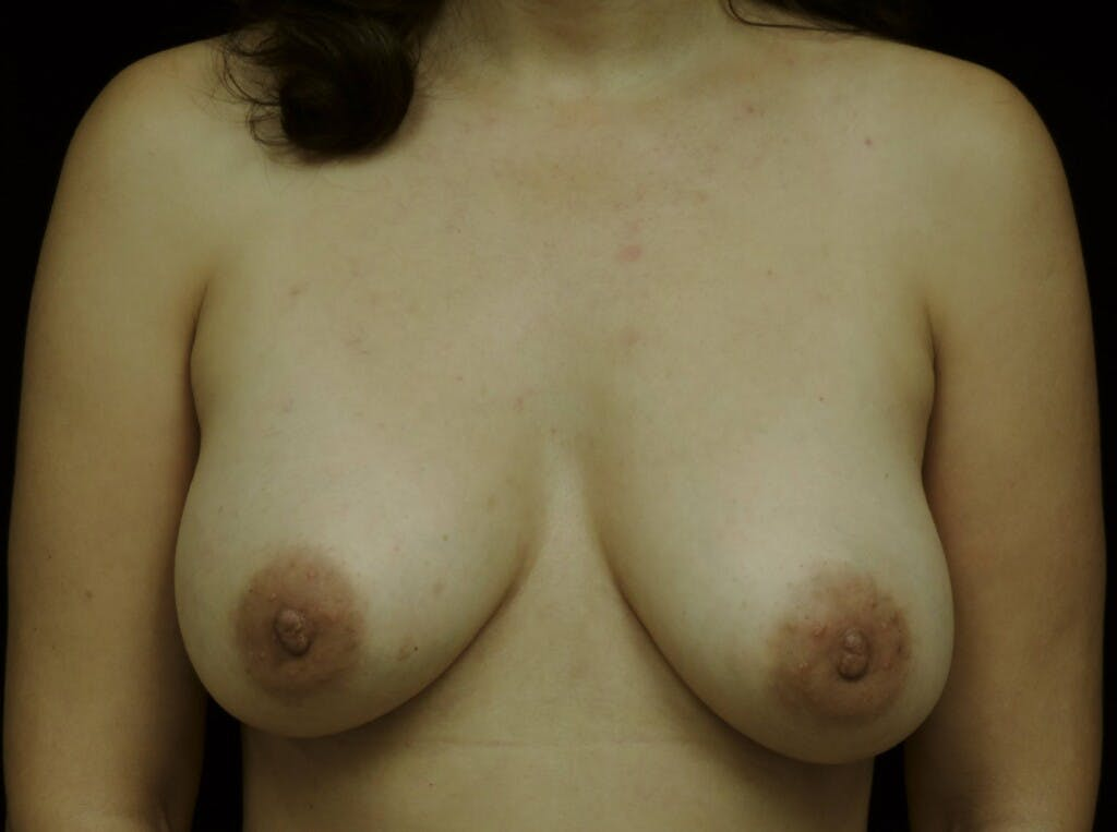 Breast Augmentation Gallery - Patient 39245382 - Image 2