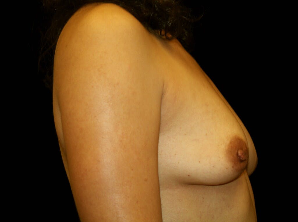 Breast Augmentation Gallery - Patient 39245382 - Image 3