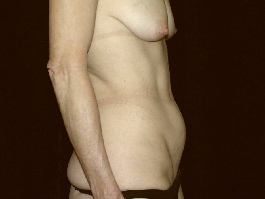 Tummy Tuck Gallery - Patient 39245381 - Image 7