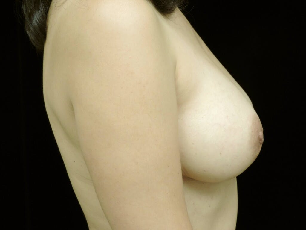 Breast Augmentation Gallery - Patient 39245382 - Image 4