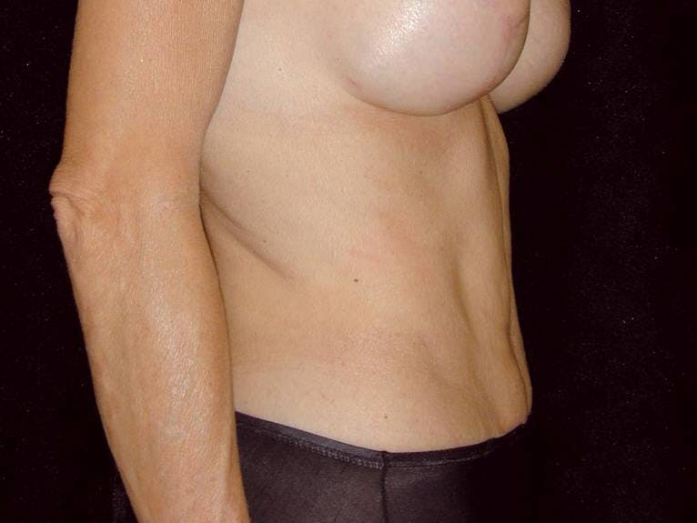 Tummy Tuck Gallery - Patient 39245381 - Image 8