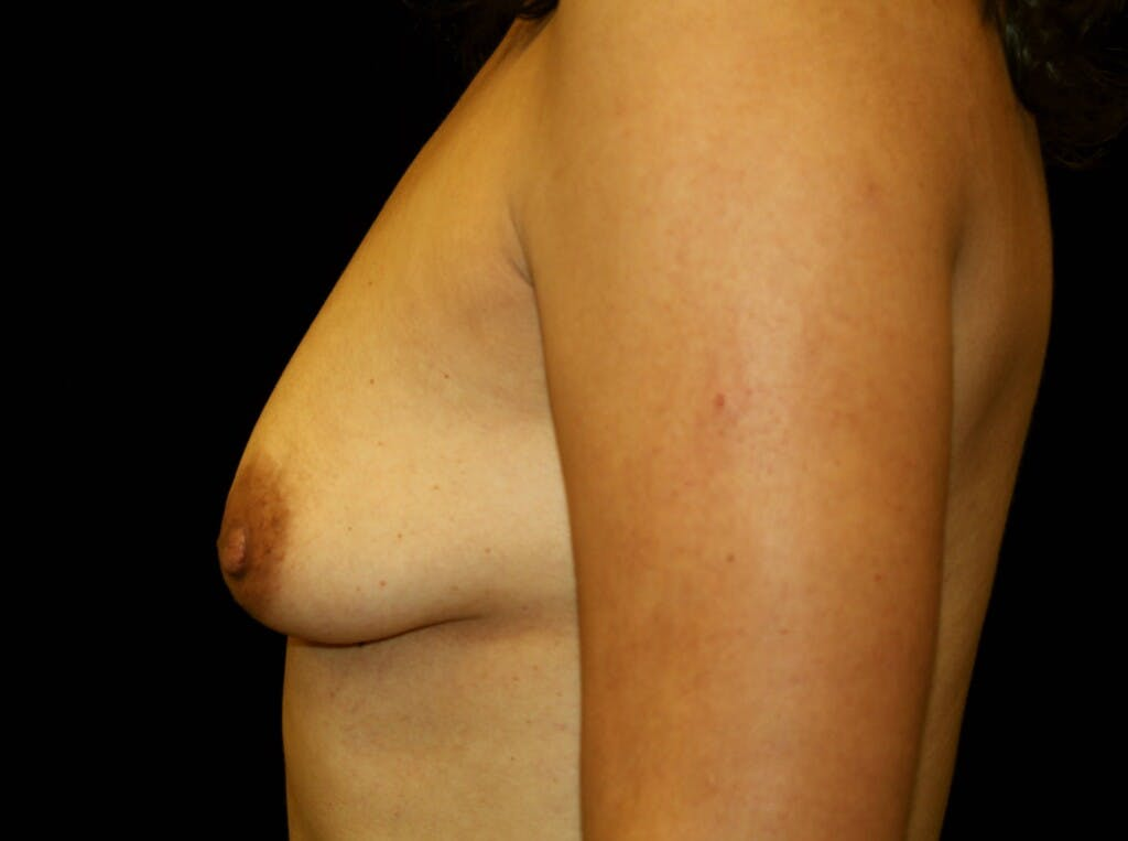 Breast Augmentation Gallery - Patient 39245382 - Image 5