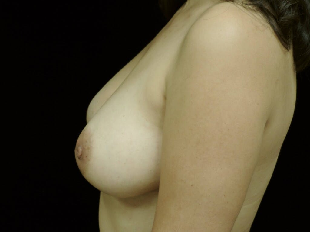 Breast Augmentation Gallery - Patient 39245382 - Image 6