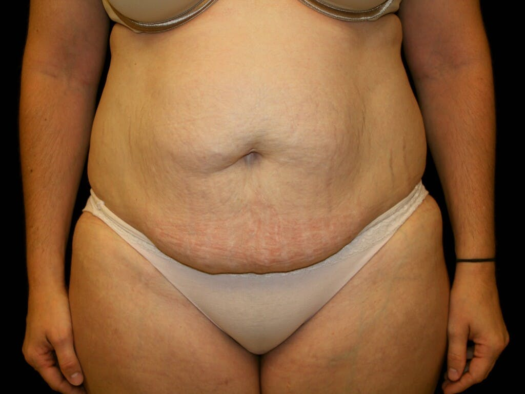 Tummy Tuck Gallery - Patient 39245385 - Image 1