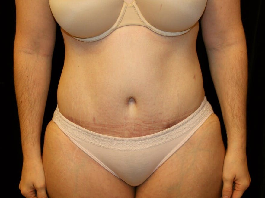 Tummy Tuck Gallery - Patient 39245385 - Image 2