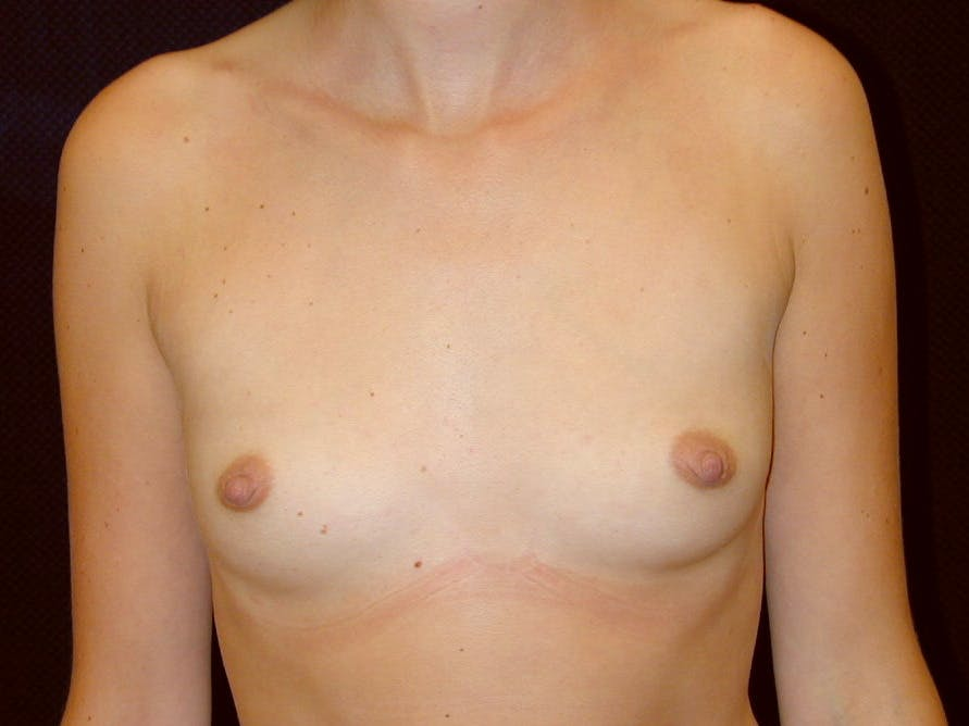 Breast Augmentation Gallery - Patient 39245386 - Image 1