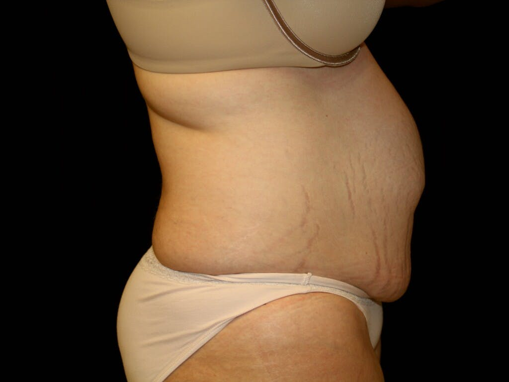Tummy Tuck Gallery - Patient 39245385 - Image 3