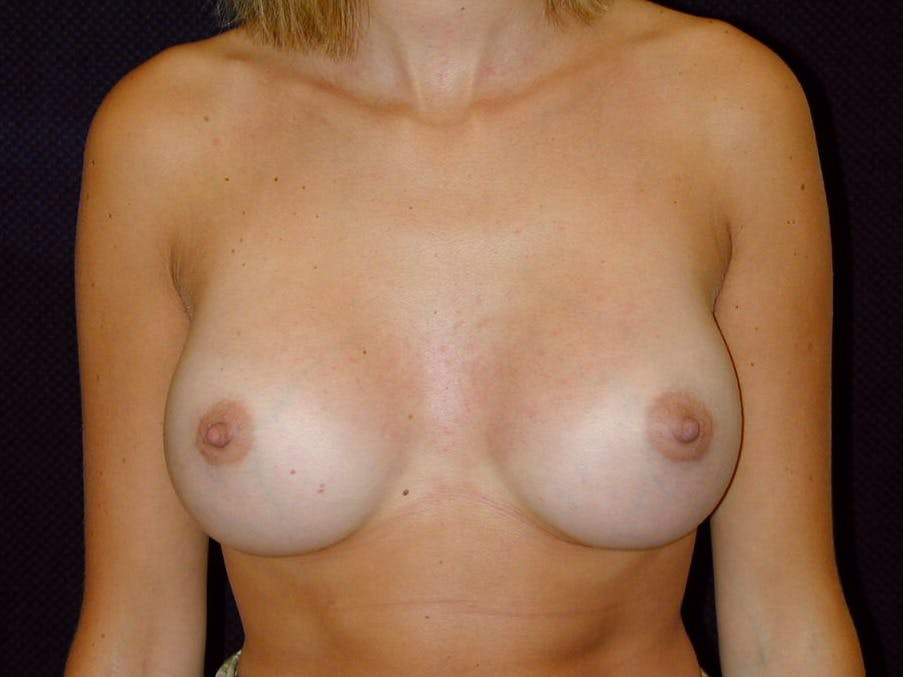 Breast Augmentation Gallery - Patient 39245386 - Image 2