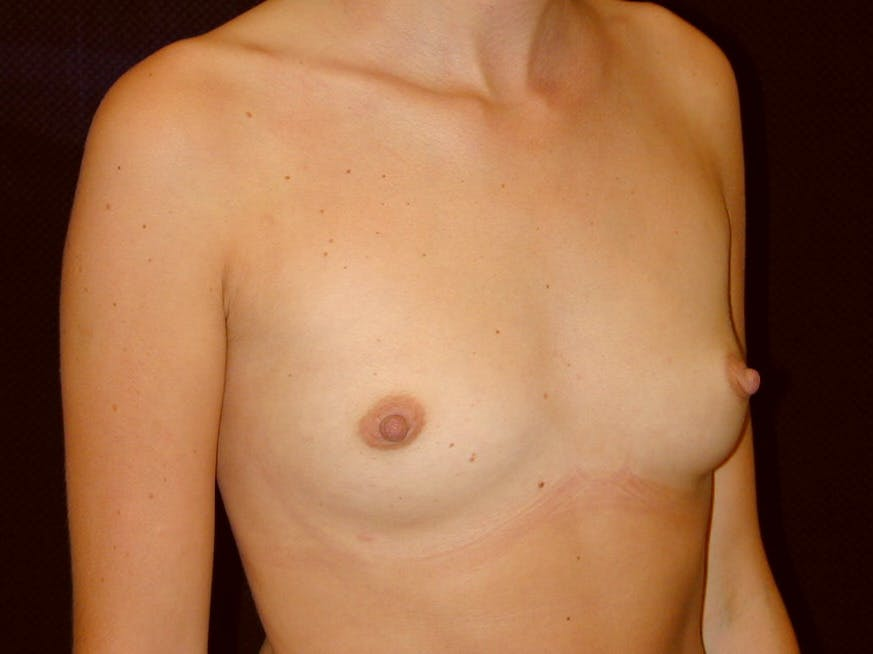 Breast Augmentation Gallery - Patient 39245386 - Image 3