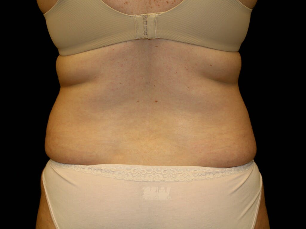 Tummy Tuck Gallery - Patient 39245385 - Image 5