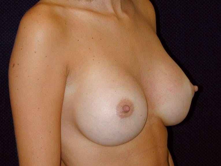 Breast Augmentation Gallery - Patient 39245386 - Image 4