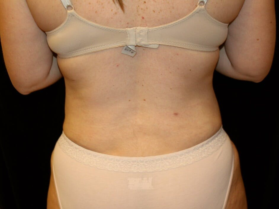 Tummy Tuck Gallery - Patient 39245385 - Image 6