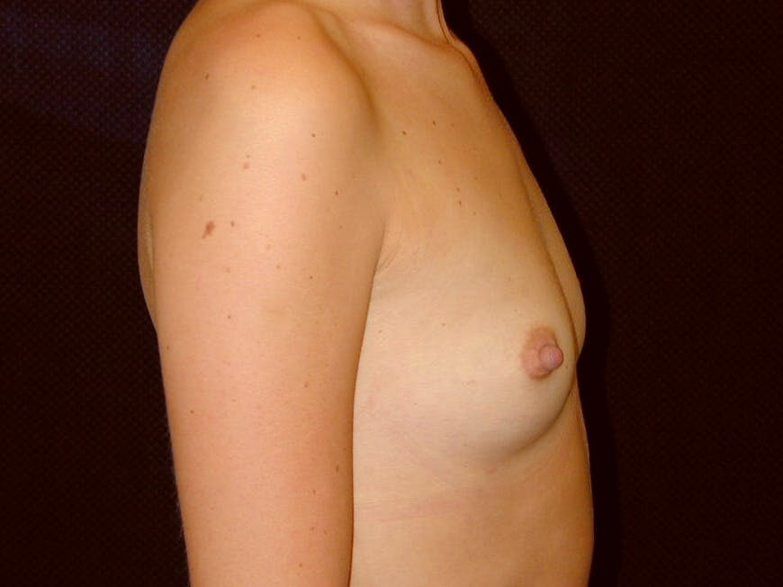 Breast Augmentation Gallery - Patient 39245386 - Image 5