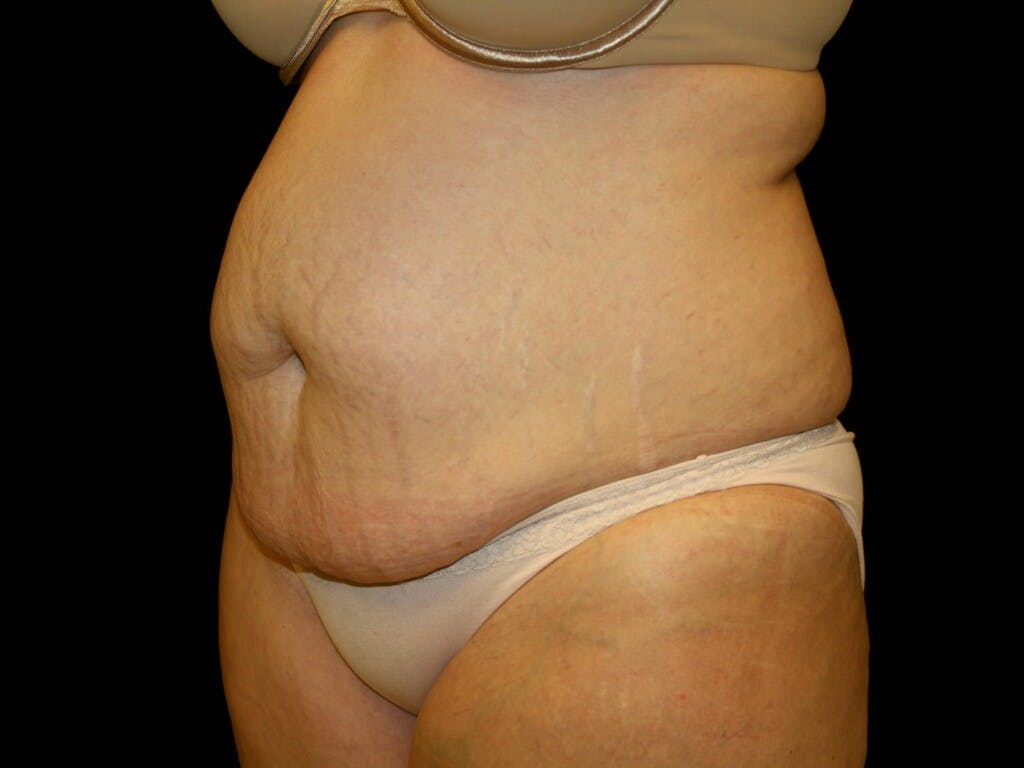 Tummy Tuck Gallery - Patient 39245385 - Image 7