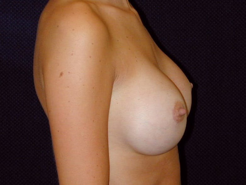 Breast Augmentation Gallery - Patient 39245386 - Image 6