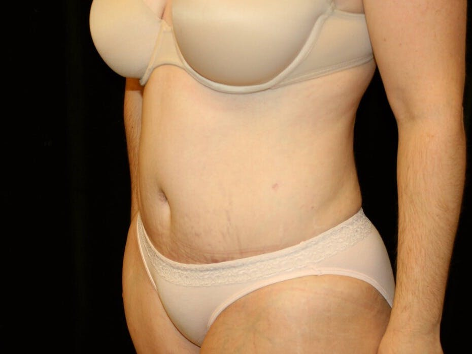 Tummy Tuck Gallery - Patient 39245385 - Image 8