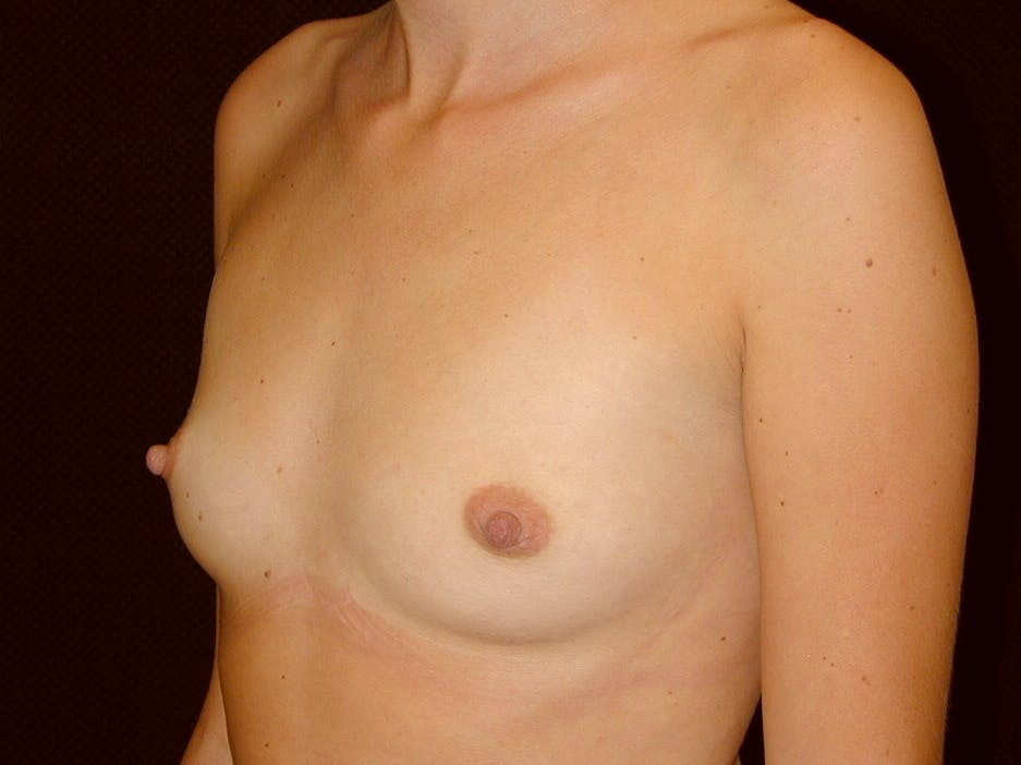 Breast Augmentation Gallery - Patient 39245386 - Image 7