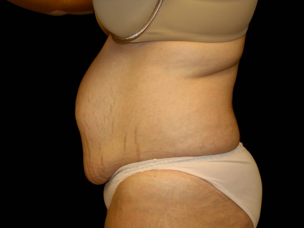Tummy Tuck Gallery - Patient 39245385 - Image 9
