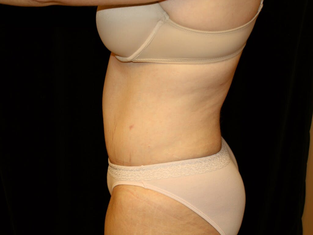 Tummy Tuck Gallery - Patient 39245385 - Image 10