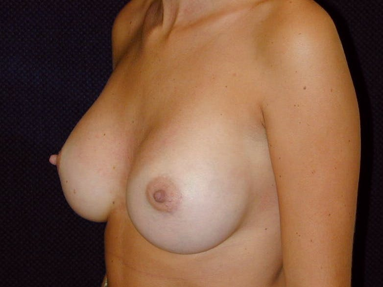 Breast Augmentation Gallery - Patient 39245386 - Image 8