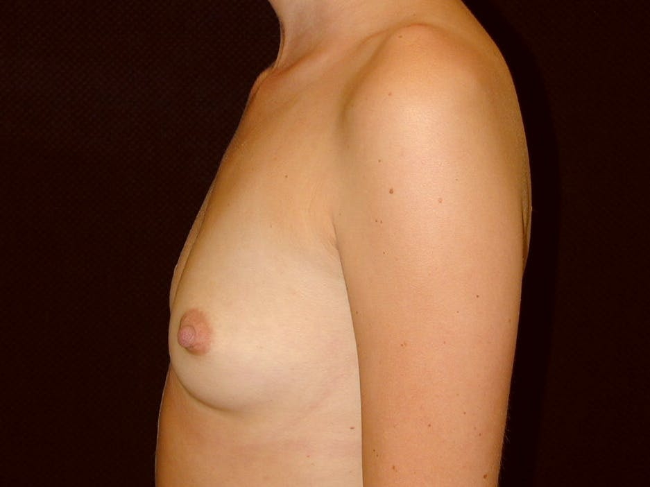 Breast Augmentation Gallery - Patient 39245386 - Image 9