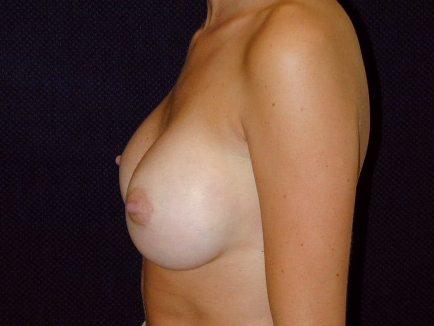 Breast Augmentation Gallery - Patient 39245386 - Image 10