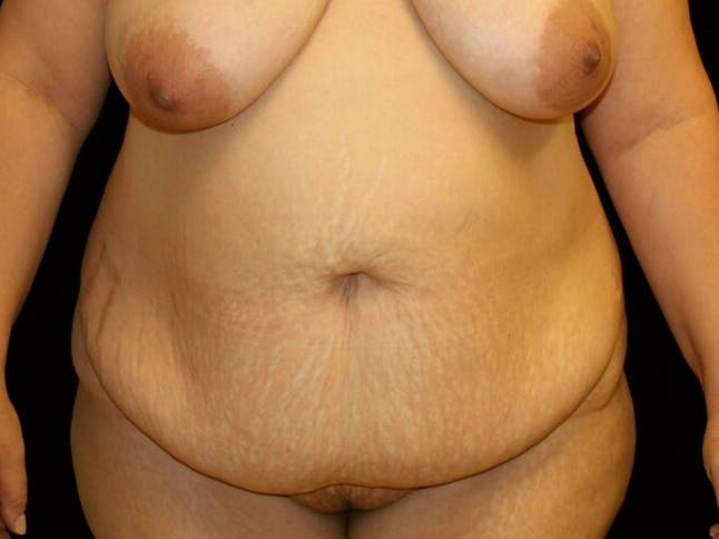 Tummy Tuck Gallery - Patient 39245403 - Image 1
