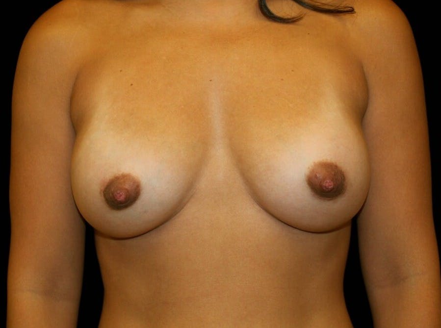 Breast Augmentation Gallery - Patient 39245404 - Image 2