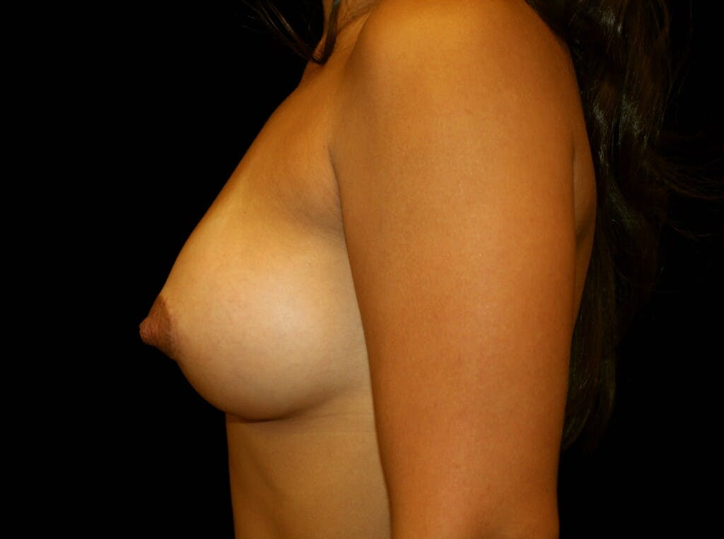 Breast Augmentation Gallery - Patient 39245404 - Image 5