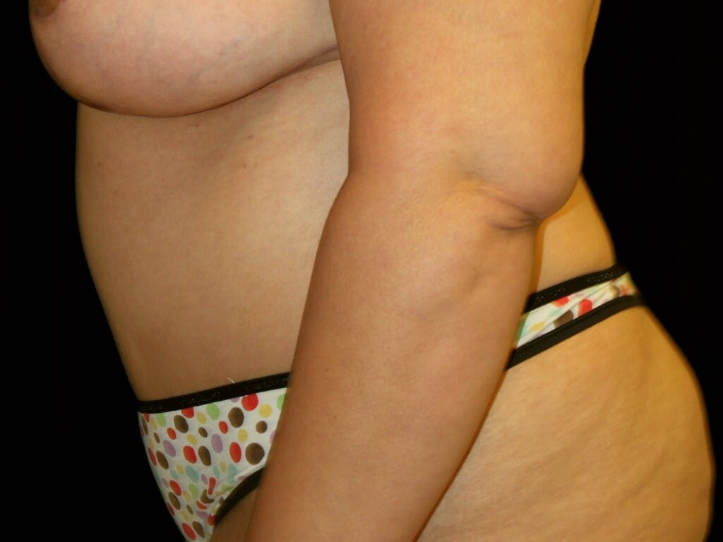 Tummy Tuck Gallery - Patient 39245403 - Image 8