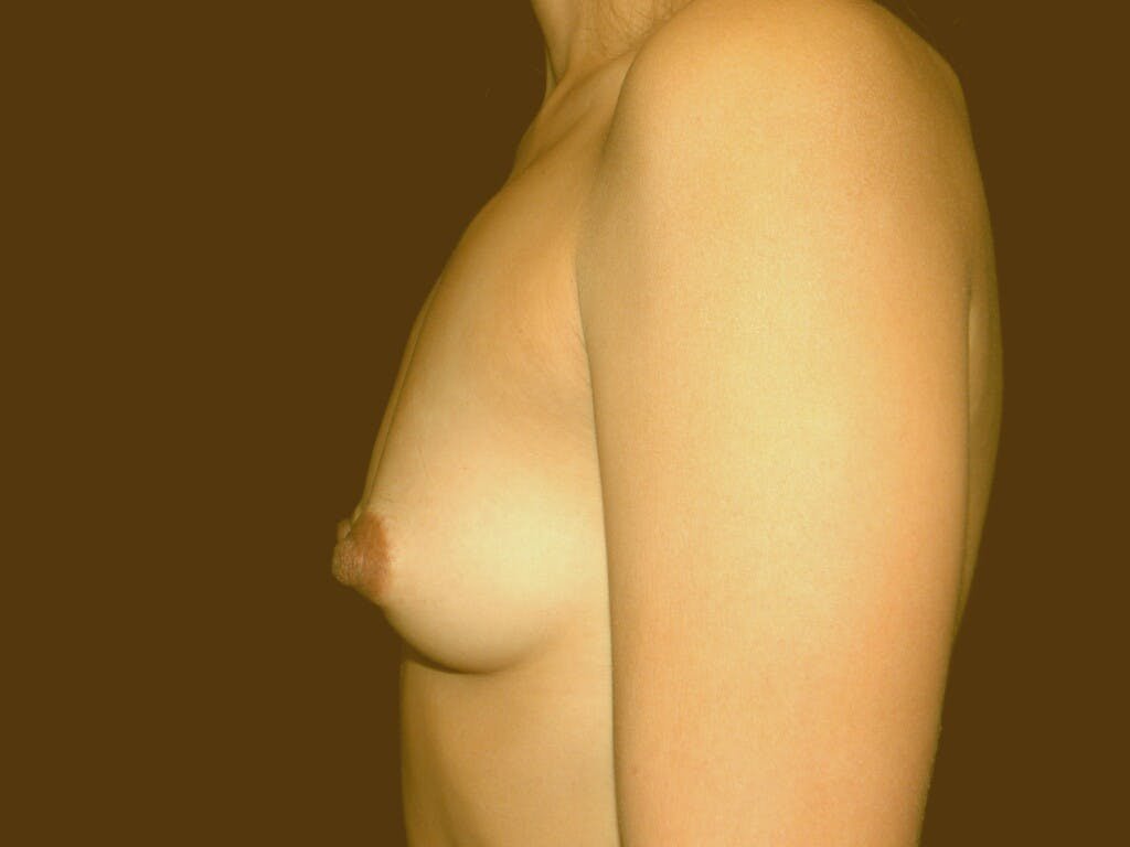 Breast Augmentation Gallery - Patient 39245404 - Image 6