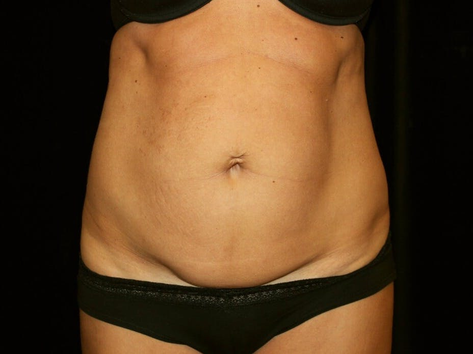 Tummy Tuck Gallery - Patient 39245408 - Image 1