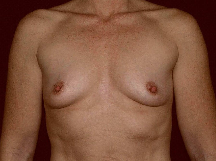 Breast Augmentation Gallery - Patient 39245406 - Image 1