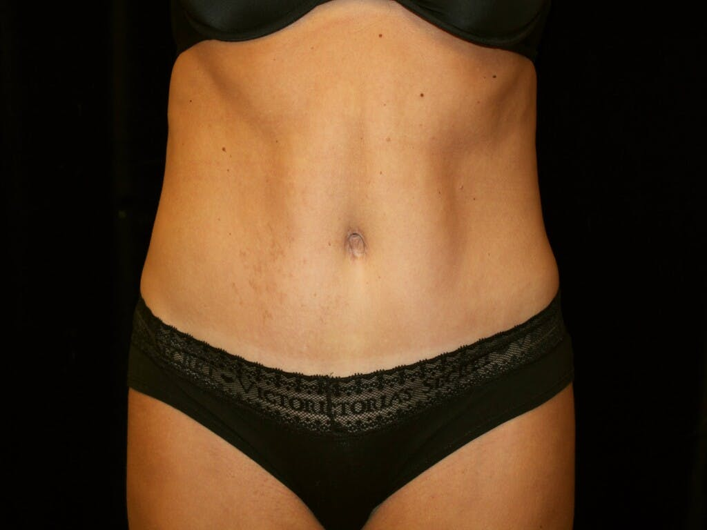 Tummy Tuck Gallery - Patient 39245408 - Image 2