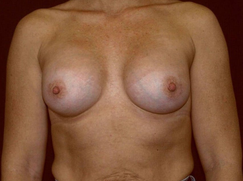 Breast Augmentation Gallery - Patient 39245406 - Image 2