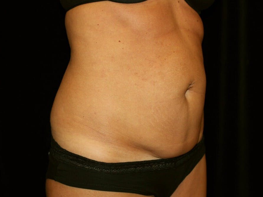 Tummy Tuck Gallery - Patient 39245408 - Image 3