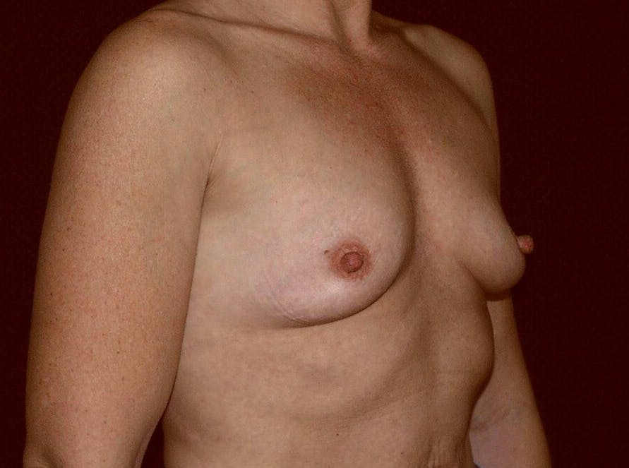 Breast Augmentation Gallery - Patient 39245406 - Image 3