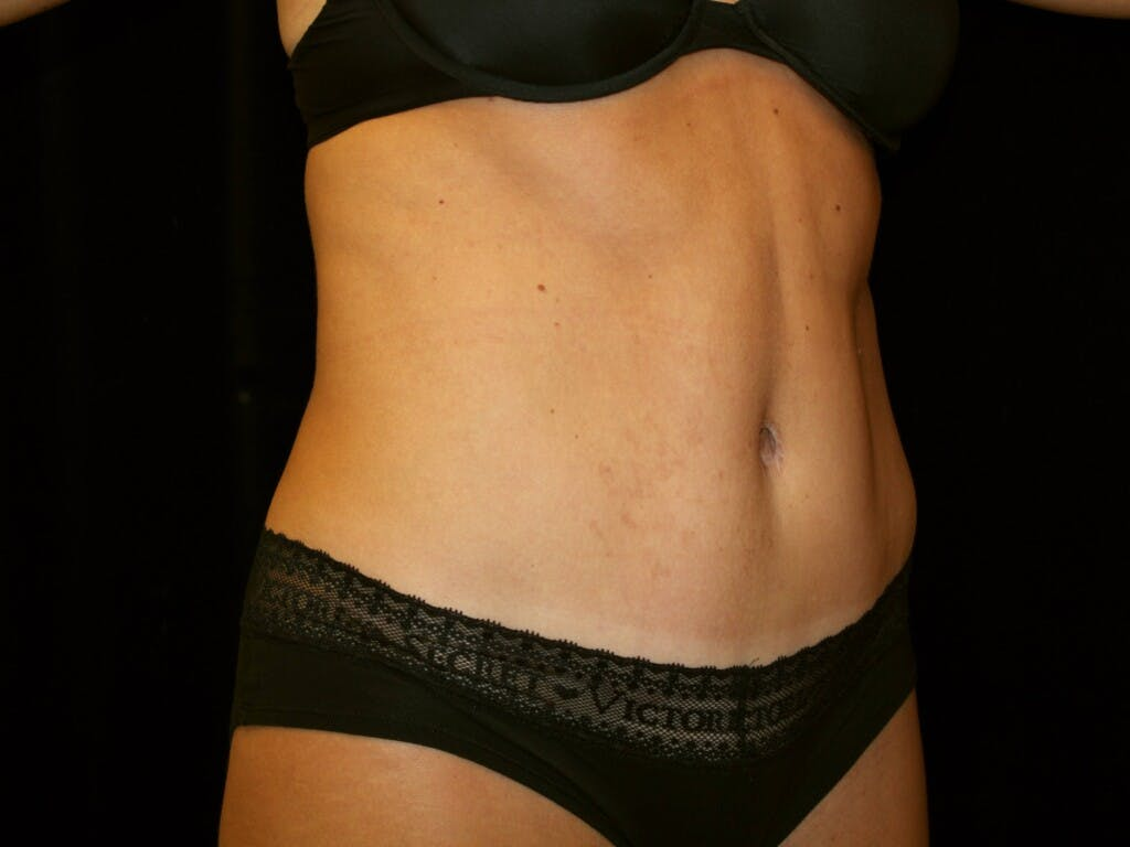 Tummy Tuck Gallery - Patient 39245408 - Image 4