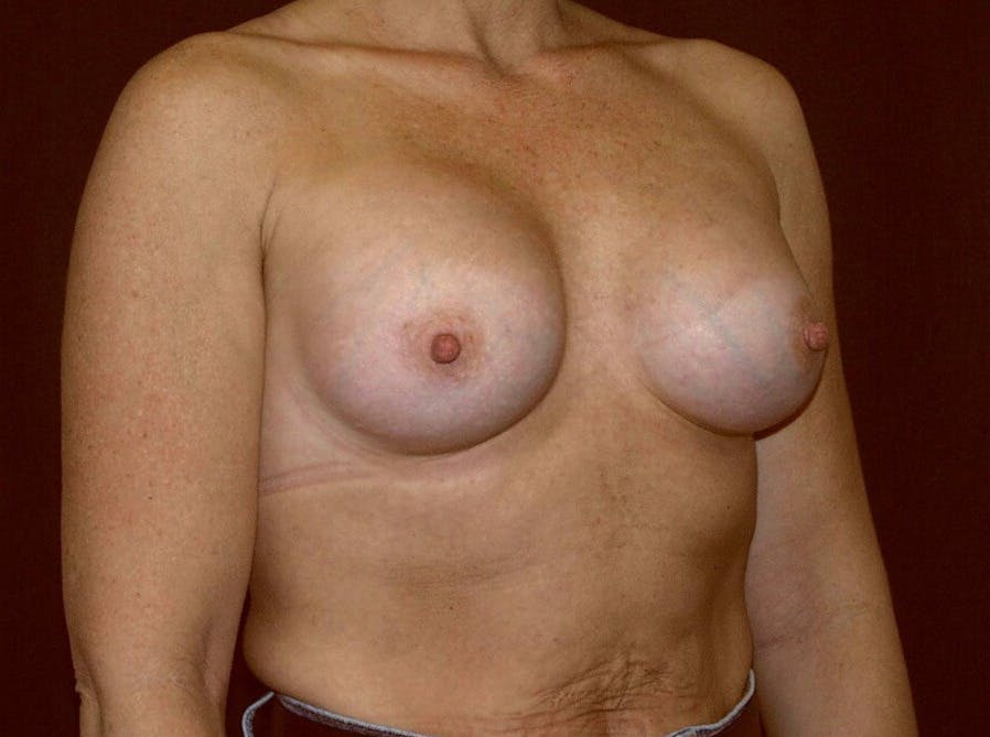 Breast Augmentation Gallery - Patient 39245406 - Image 4