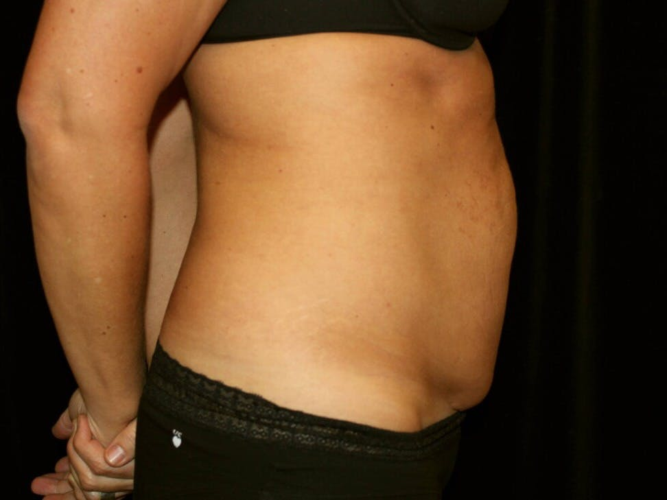 Tummy Tuck Gallery - Patient 39245408 - Image 5